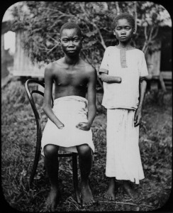 Punishment for not collecting enough of the rubber plant in Belgium Congo ca 1908